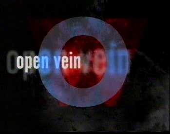 O for Open Vein
